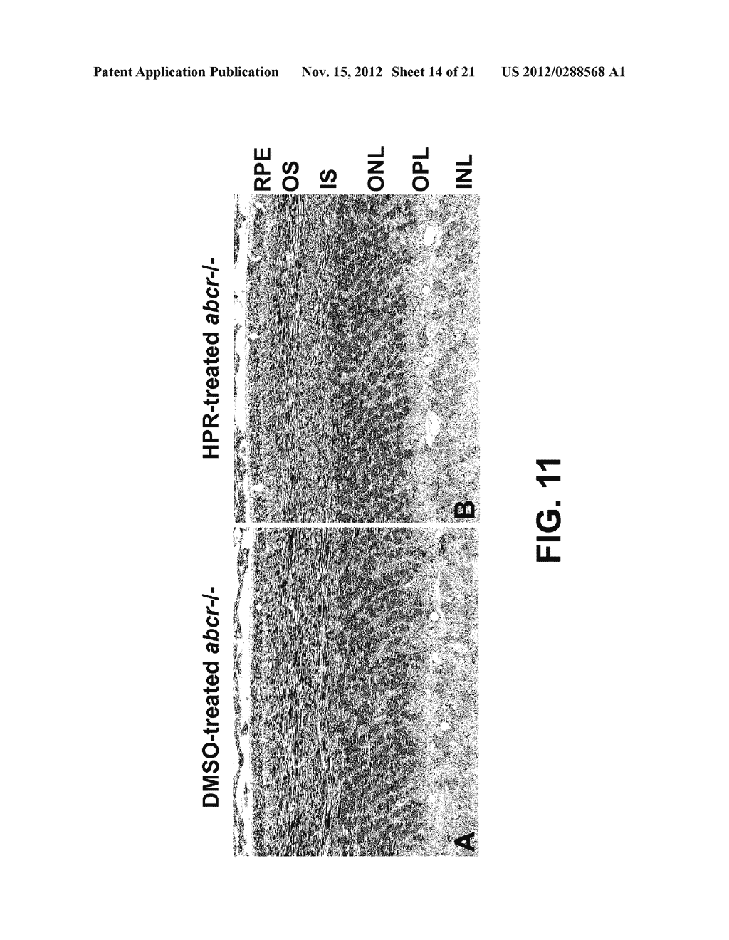 METHODS AND COMPOSITIONS FOR TREATING OPHTHALMIC CONDITIONS VIA SERUM     RETINOL, SERUM RETINOL BINDING PROTEIN (RBP), AND/OR SERUM RETINOL-RBP     MODULATION - diagram, schematic, and image 15