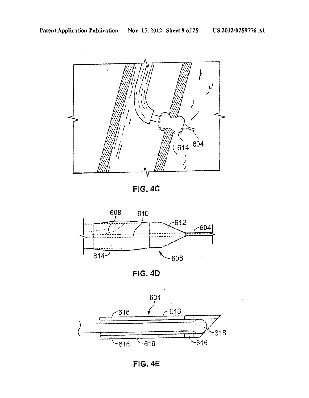 METHODS AND DEVICES FOR DIAGNOSING, MONITORING, OR TREATING MEDICAL     CONDITIONS THROUGH AN OPENING THROUGH AN AIRWAY WALL - diagram, schematic, and image 10