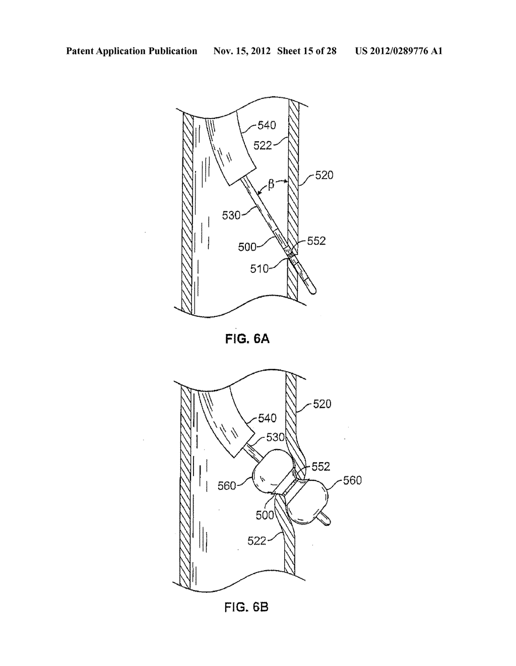 METHODS AND DEVICES FOR DIAGNOSING, MONITORING, OR TREATING MEDICAL     CONDITIONS THROUGH AN OPENING THROUGH AN AIRWAY WALL - diagram, schematic, and image 16
