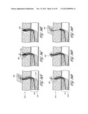 STRUCTURES FOR PERMANENT OCCLUSION OF A HOLLOW ANATOMICAL STRUCTURE diagram and image