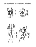 Anti-Rotation Fixation Element for Spinal Prostheses diagram and image