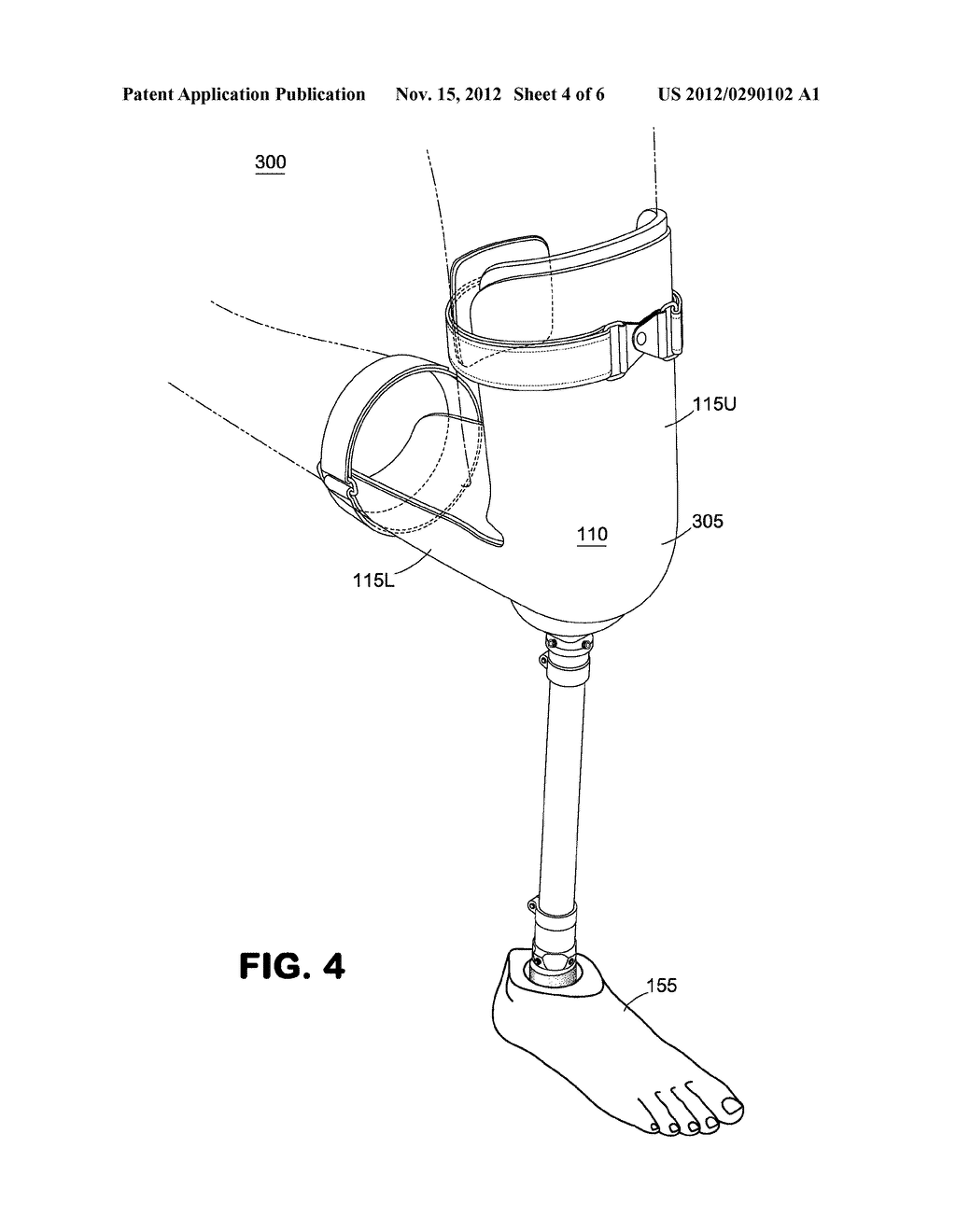 Knee Crutch System - diagram, schematic, and image 05