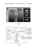 GENERATING PATIENT SPECIFIC INSTRUMENTS FOR USE AS SURGICAL AIDS diagram and image