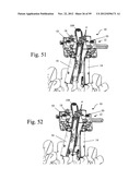 Method and Apparatus for Performing Spinal Fusion Surgery diagram and image