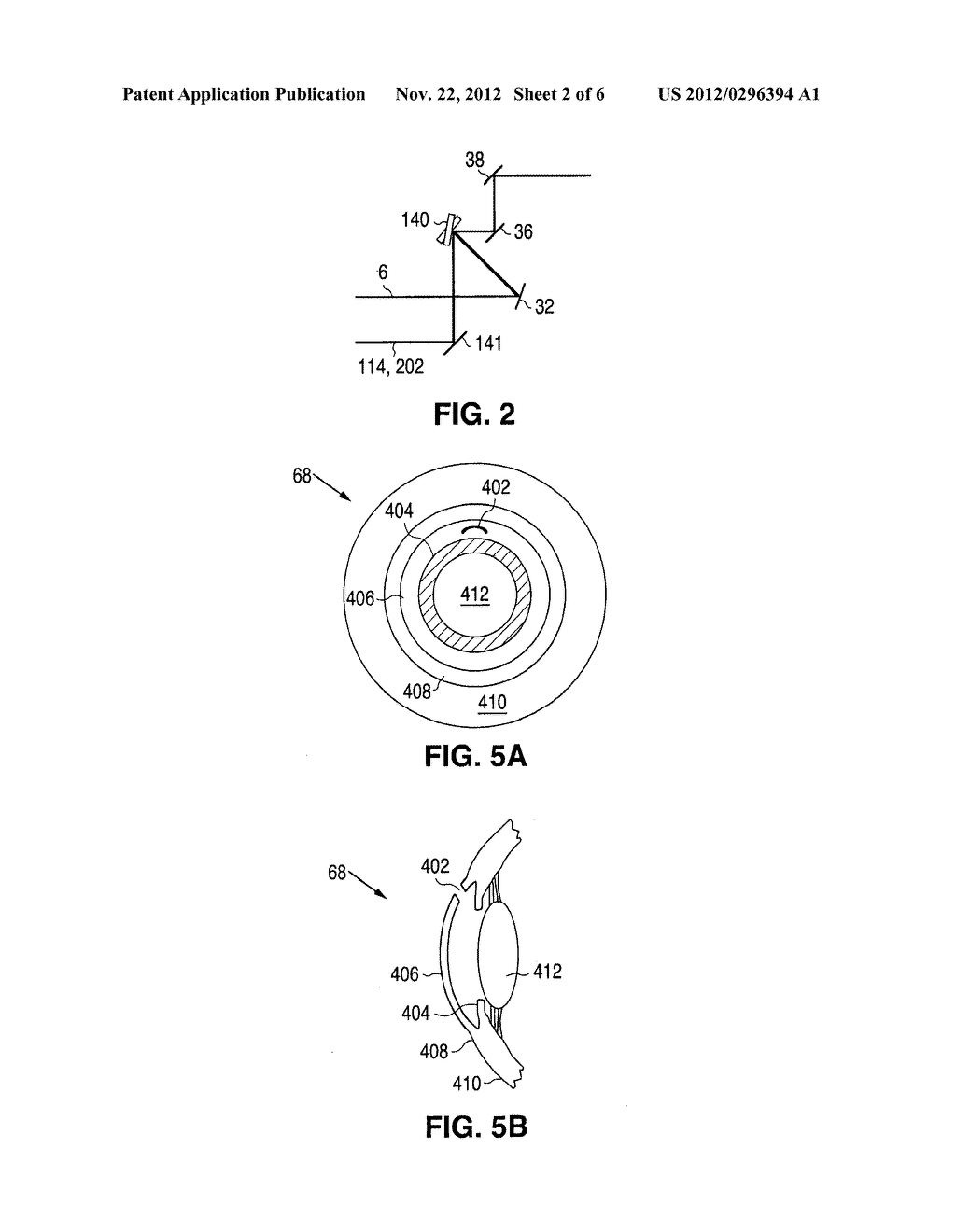 METHOD AND APPARATUS FOR CREATING OCULAR SURGICAL AND RELAXING INCISIONS - diagram, schematic, and image 03