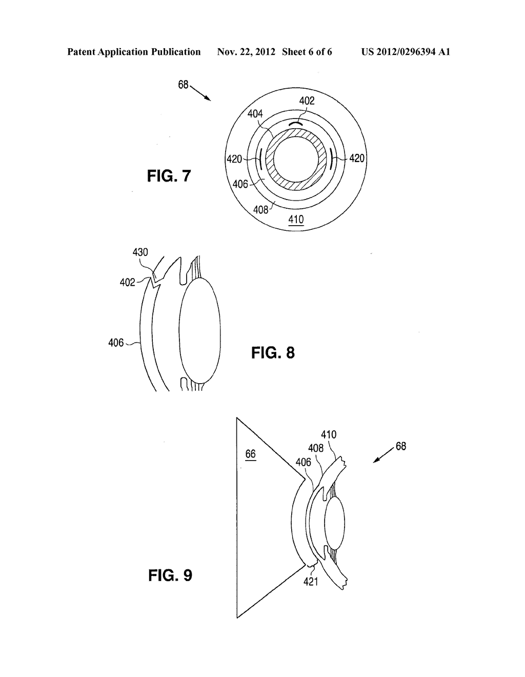 METHOD AND APPARATUS FOR CREATING OCULAR SURGICAL AND RELAXING INCISIONS - diagram, schematic, and image 07