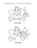 SYSTEMS FOR AND METHODS OF FUSING A SACROILIAC JOINT diagram and image