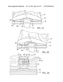 KNEE JOINT PROSTHESIS SYSTEM AND METHOD FOR IMPLANTATION diagram and image