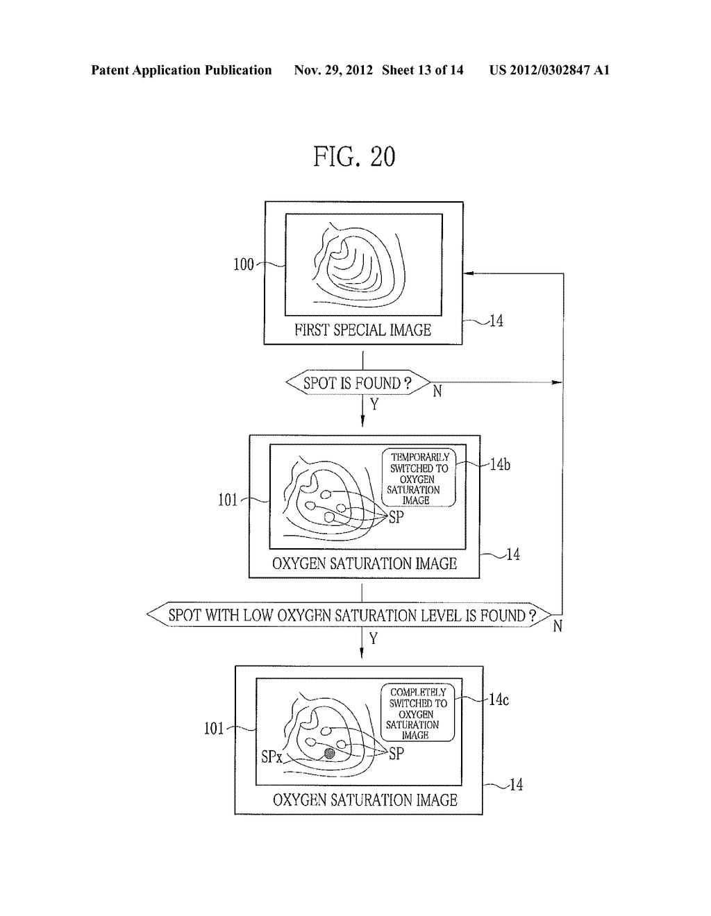 ENDOSCOPE SYSTEM AND METHOD FOR ASSISTING IN DIAGNOSTIC ENDOSCOPY - diagram, schematic, and image 14