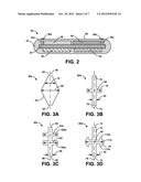 ELECTRODE STRUCTURE FOR IMPLANTABLE MEDICAL DEVICE diagram and image