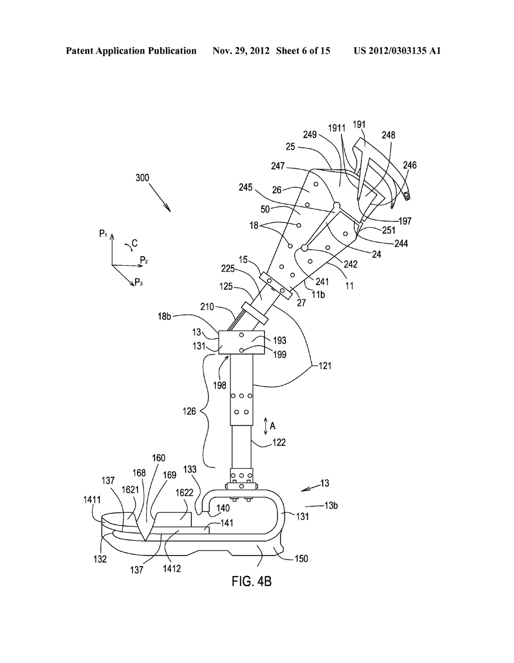 Prosthetic Devices and Methods of Making and Using the Same - diagram, schematic, and image 07