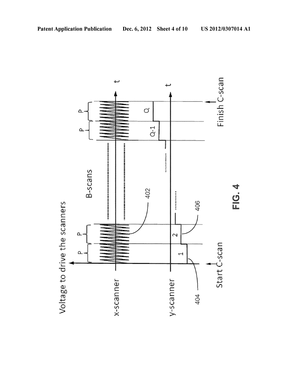 METHOD AND APPARATUS FOR ULTRAHIGH SENSITIVE OPTICAL MICROANGIOGRAPHY - diagram, schematic, and image 05