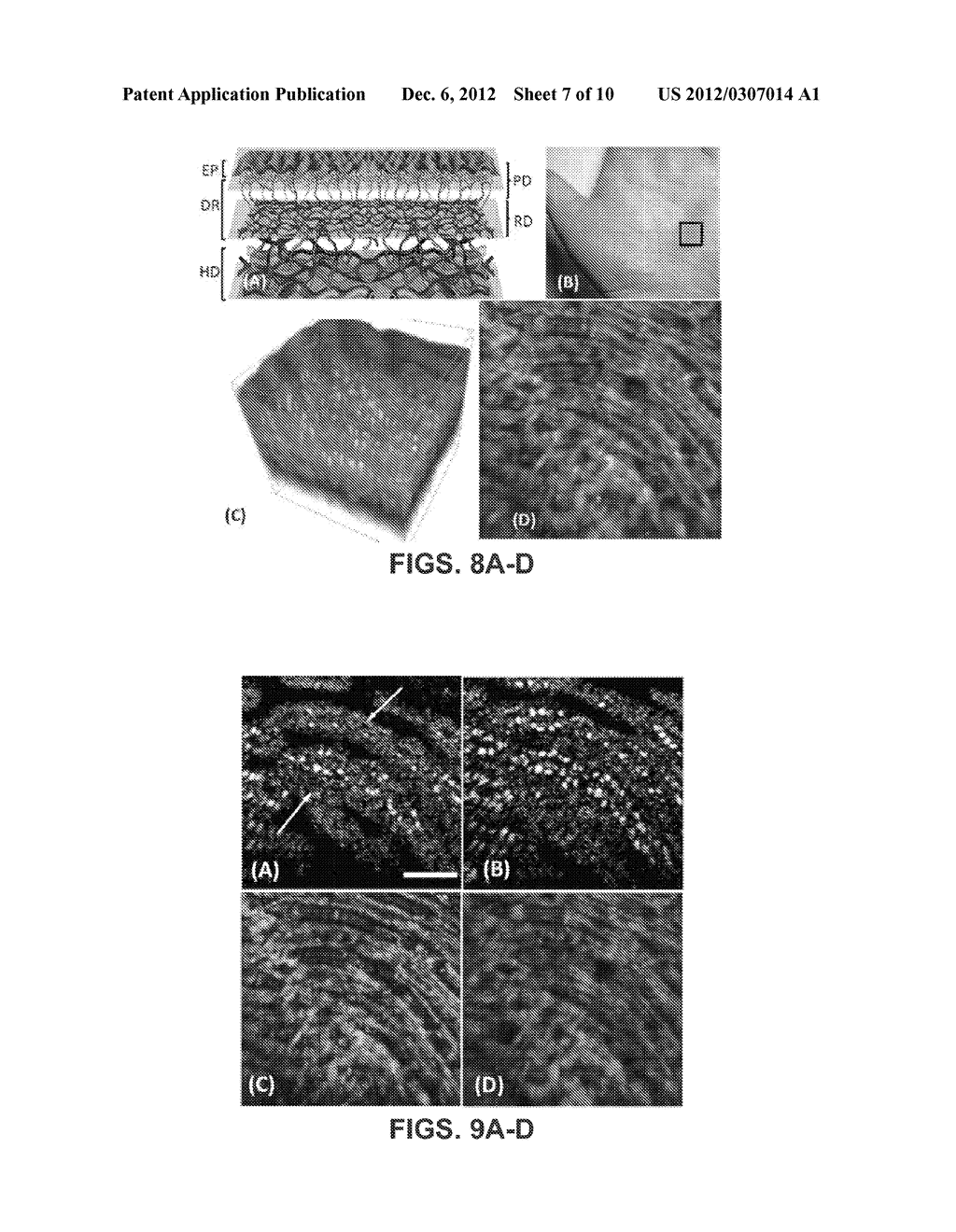 METHOD AND APPARATUS FOR ULTRAHIGH SENSITIVE OPTICAL MICROANGIOGRAPHY - diagram, schematic, and image 08