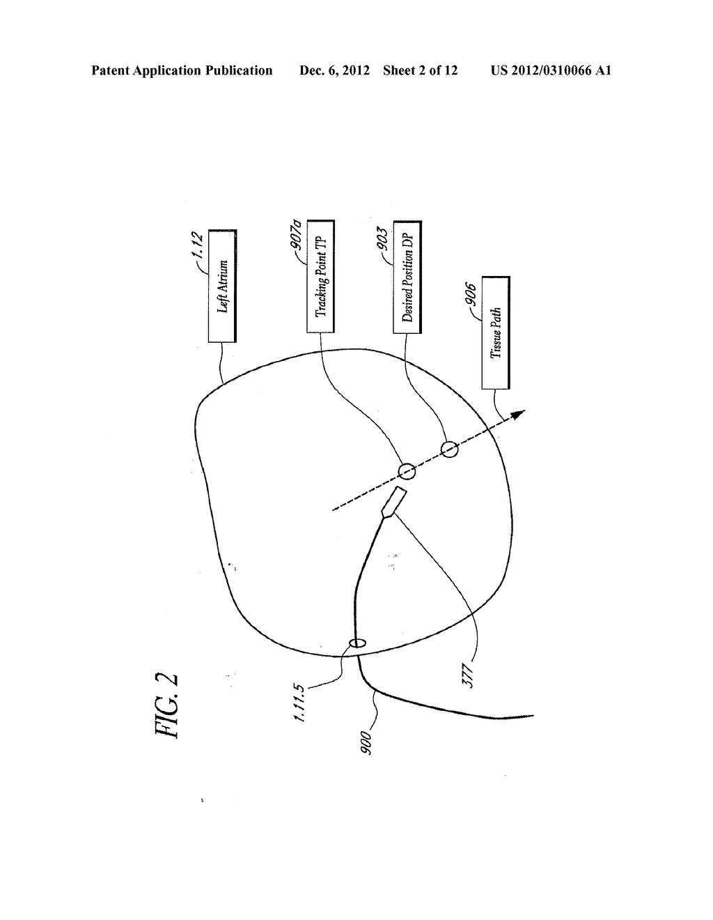 METHOD AND APPARATUS FOR CREATING A HIGH RESOLUTION MAP OF THE ELECTRICAL     AND MECHANICAL PROPERTIES OF THE HEART - diagram, schematic, and image 03