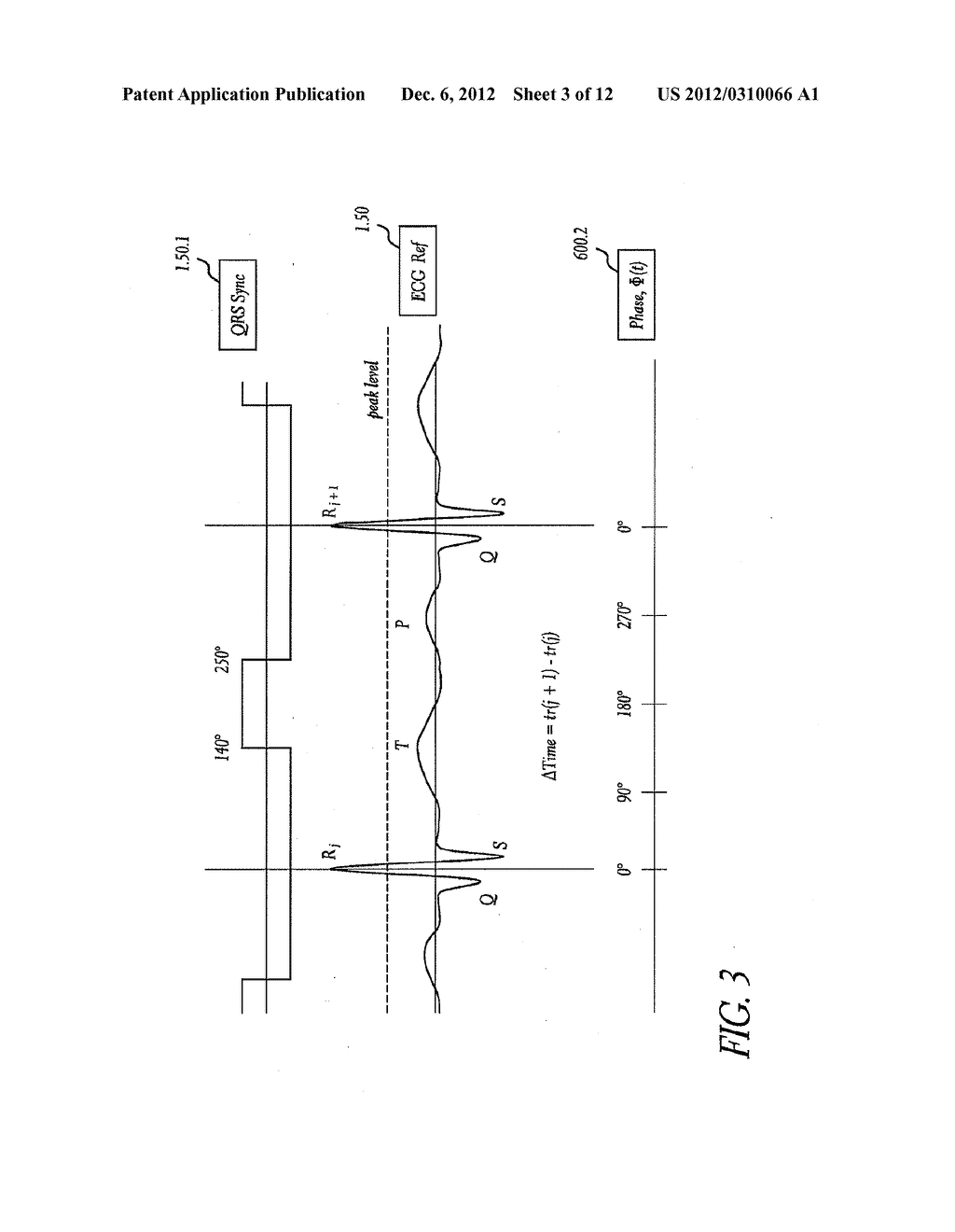 METHOD AND APPARATUS FOR CREATING A HIGH RESOLUTION MAP OF THE ELECTRICAL     AND MECHANICAL PROPERTIES OF THE HEART - diagram, schematic, and image 04