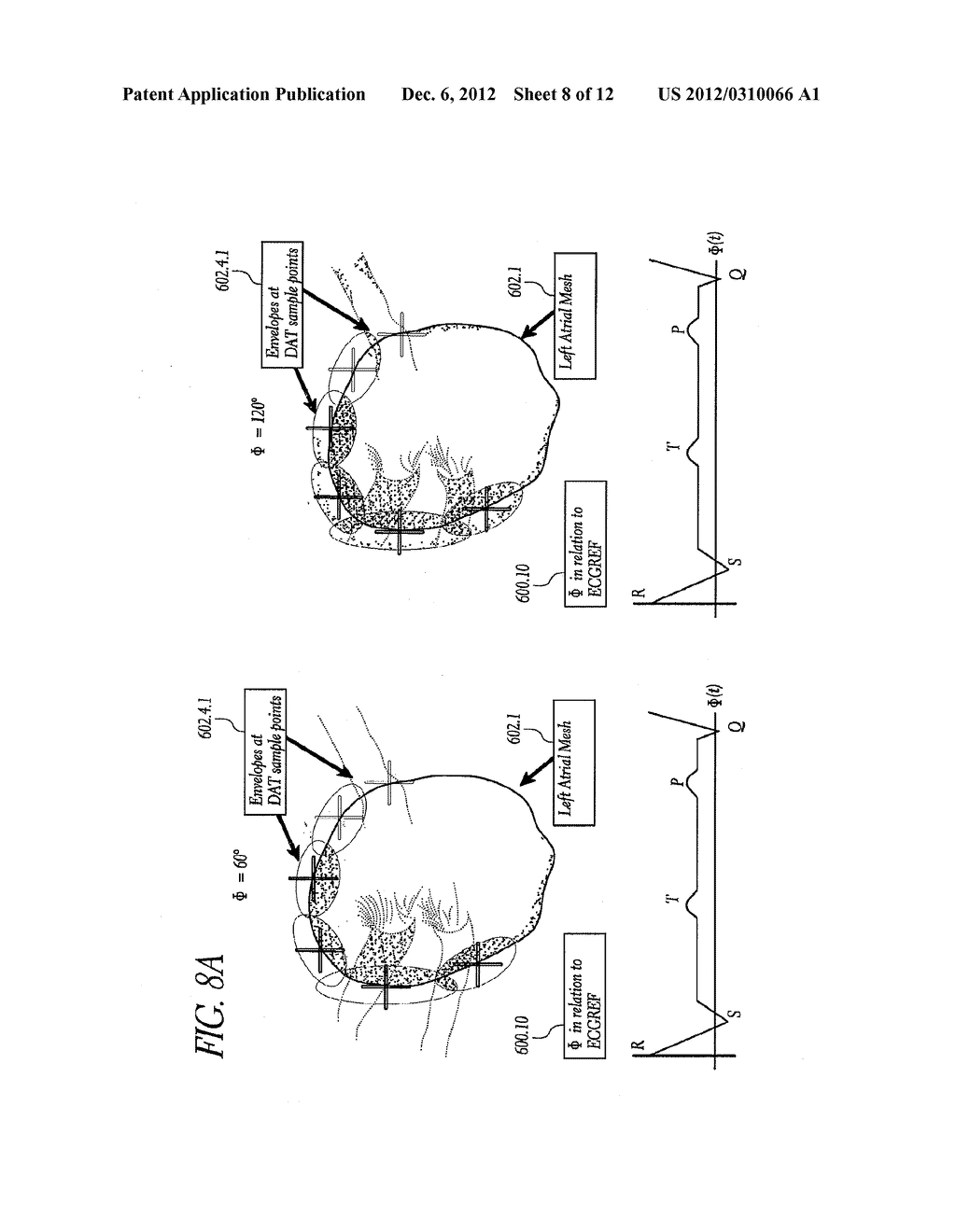 METHOD AND APPARATUS FOR CREATING A HIGH RESOLUTION MAP OF THE ELECTRICAL     AND MECHANICAL PROPERTIES OF THE HEART - diagram, schematic, and image 09