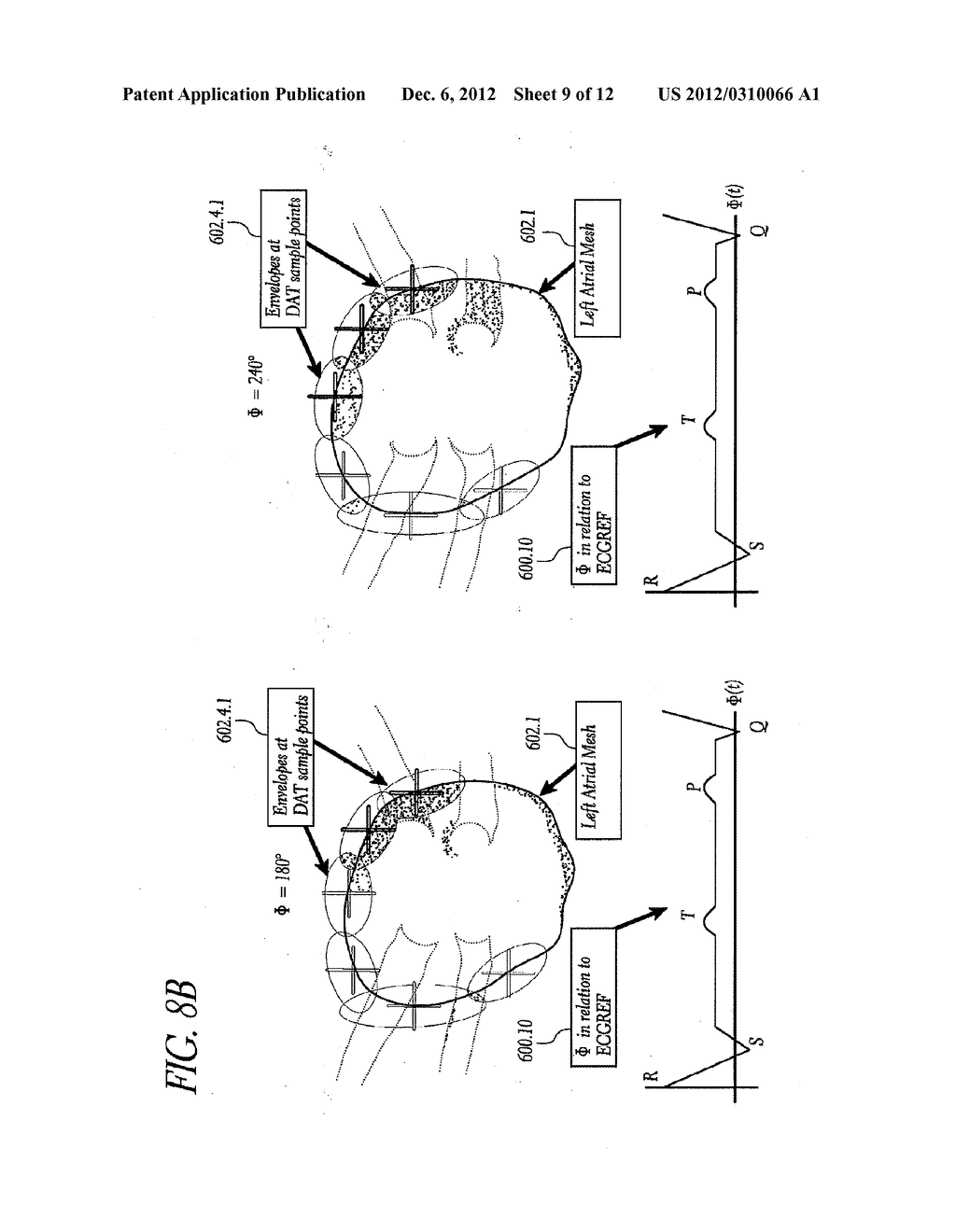 METHOD AND APPARATUS FOR CREATING A HIGH RESOLUTION MAP OF THE ELECTRICAL     AND MECHANICAL PROPERTIES OF THE HEART - diagram, schematic, and image 10