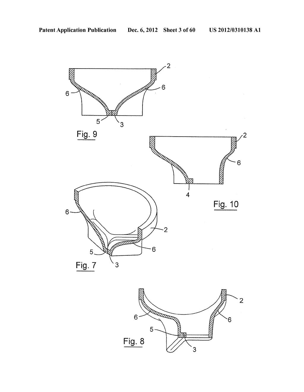 GASTROINTESTINAL IMPLANT DEVICE AND DELIVERY SYSTEM THEREFOR - diagram, schematic, and image 04