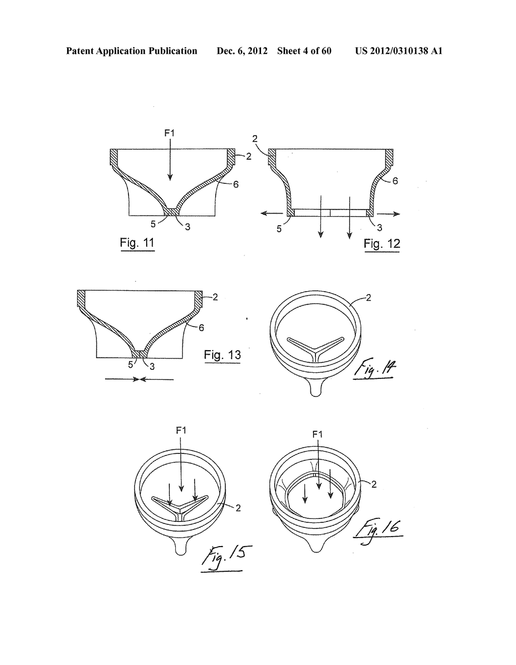 GASTROINTESTINAL IMPLANT DEVICE AND DELIVERY SYSTEM THEREFOR - diagram, schematic, and image 05