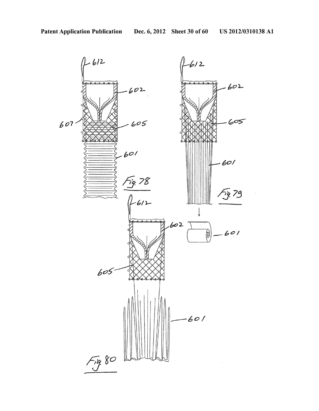 GASTROINTESTINAL IMPLANT DEVICE AND DELIVERY SYSTEM THEREFOR - diagram, schematic, and image 31