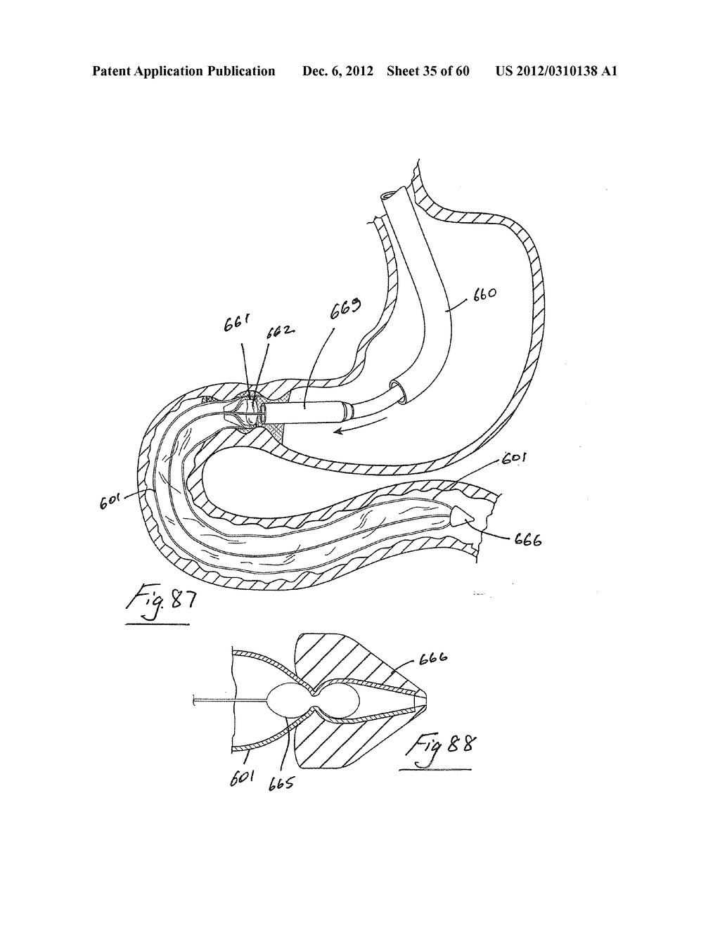 GASTROINTESTINAL IMPLANT DEVICE AND DELIVERY SYSTEM THEREFOR - diagram, schematic, and image 36
