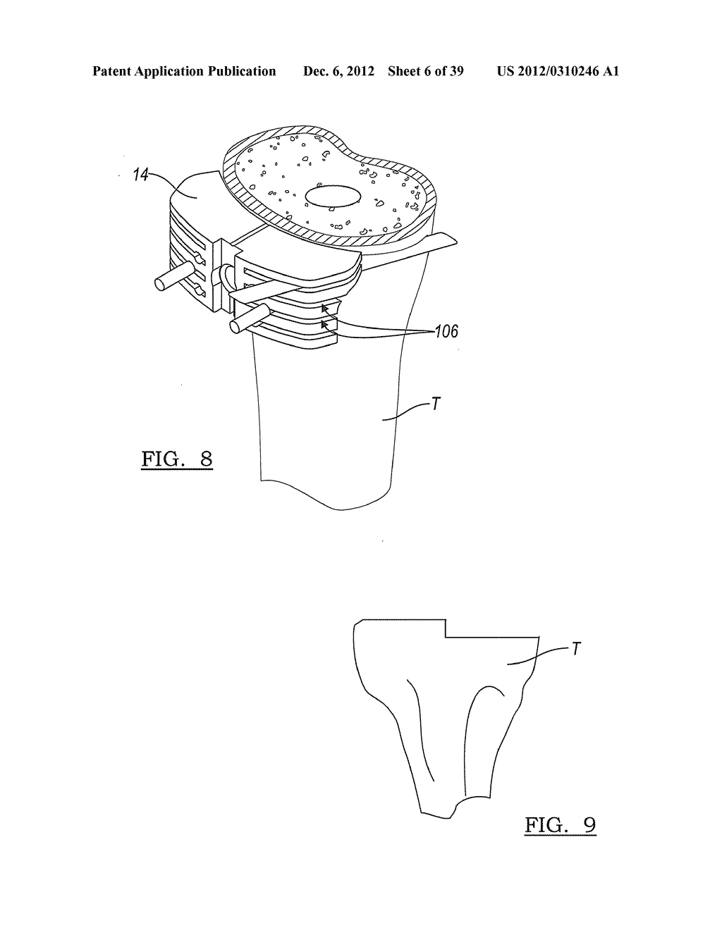 Method And Apparatus For Implanting A Knee Prosthesis - diagram, schematic, and image 07
