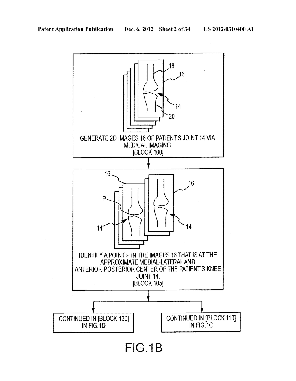 SYSTEM AND METHOD FOR MANUFACTURING ARTHROPLASTY JIGS - diagram, schematic, and image 03