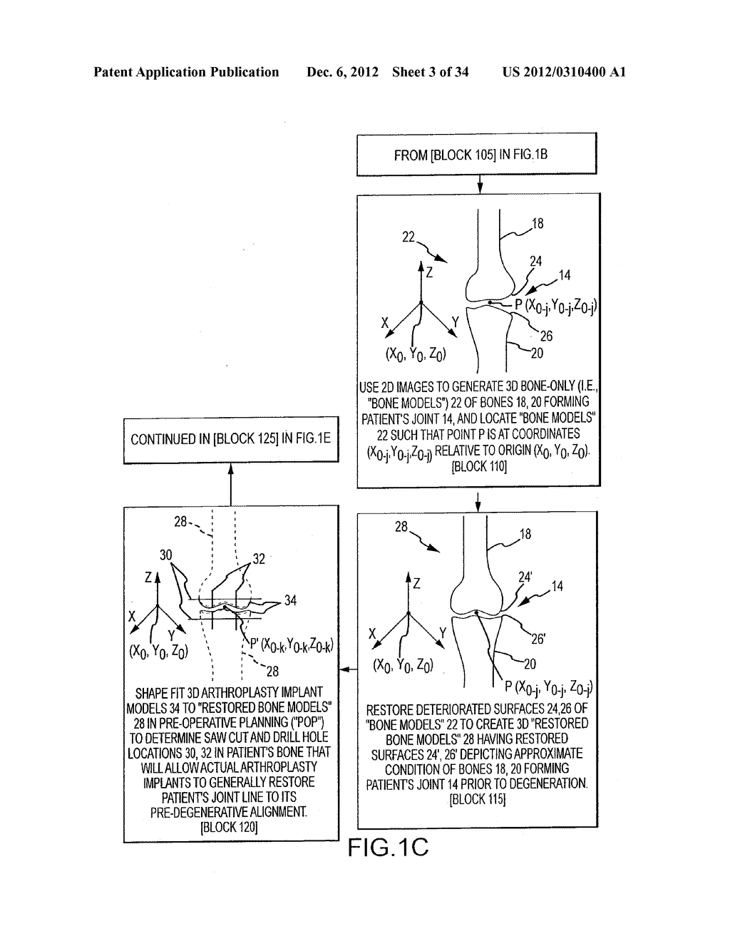 SYSTEM AND METHOD FOR MANUFACTURING ARTHROPLASTY JIGS - diagram, schematic, and image 04