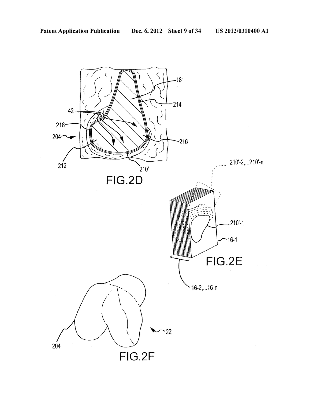 SYSTEM AND METHOD FOR MANUFACTURING ARTHROPLASTY JIGS - diagram, schematic, and image 10