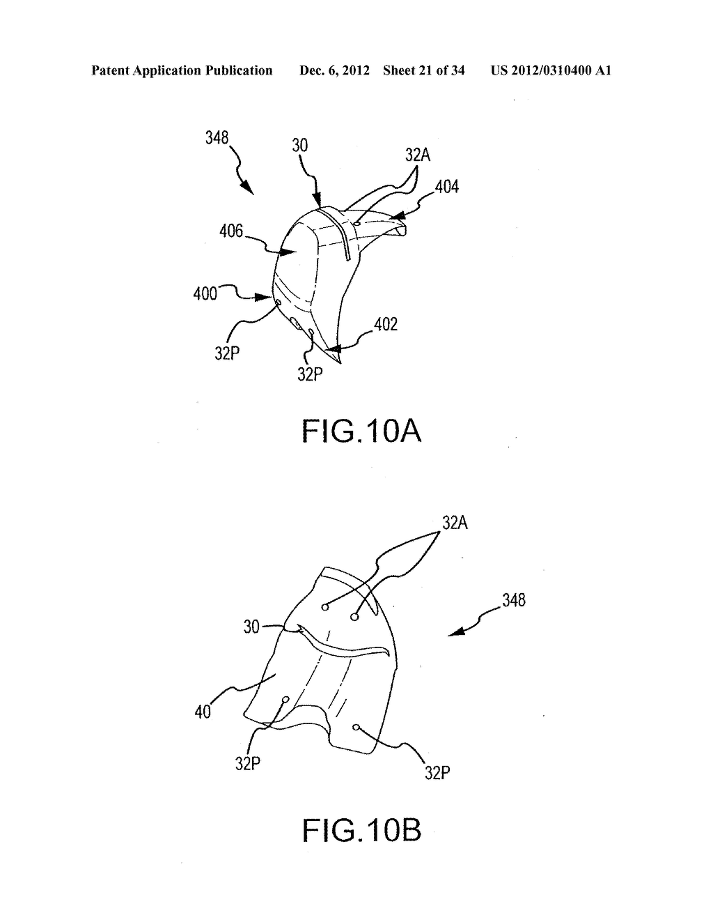 SYSTEM AND METHOD FOR MANUFACTURING ARTHROPLASTY JIGS - diagram, schematic, and image 22
