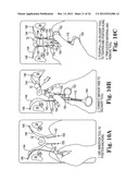 SURGICAL ARTICLES AND METHODS diagram and image