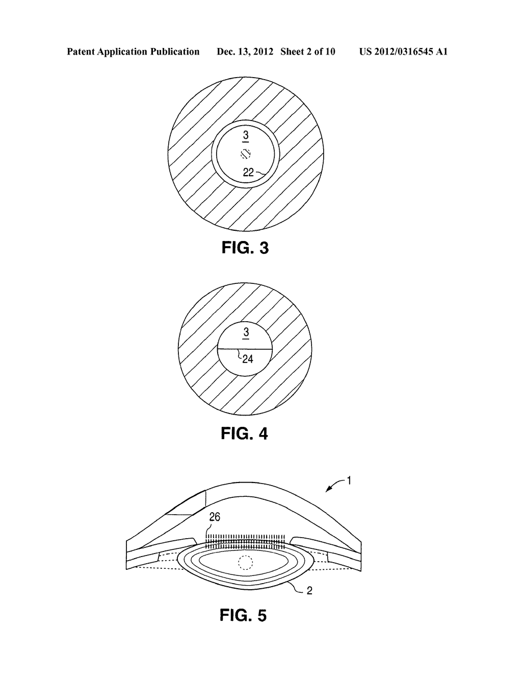 METHOD AND APPARATUS FOR PATTERNED PLASMA-MEDIATED LASER TREPHINATION OF     THE LENS CAPSULE AND THREE DIMENSIONAL PHACO-SEGMENTATION - diagram, schematic, and image 03