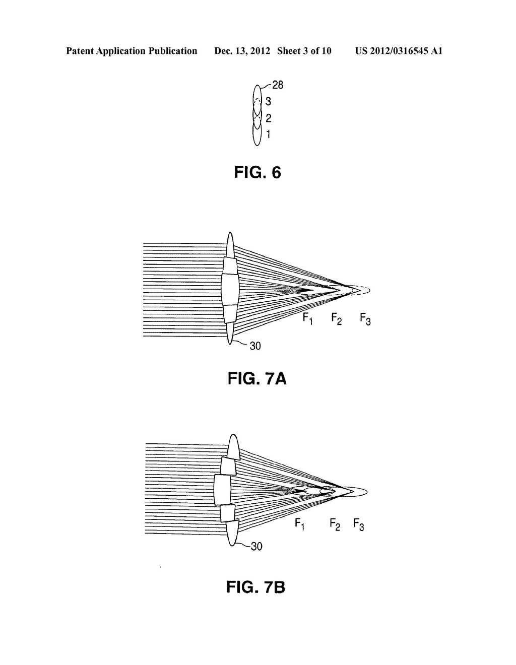 METHOD AND APPARATUS FOR PATTERNED PLASMA-MEDIATED LASER TREPHINATION OF     THE LENS CAPSULE AND THREE DIMENSIONAL PHACO-SEGMENTATION - diagram, schematic, and image 04