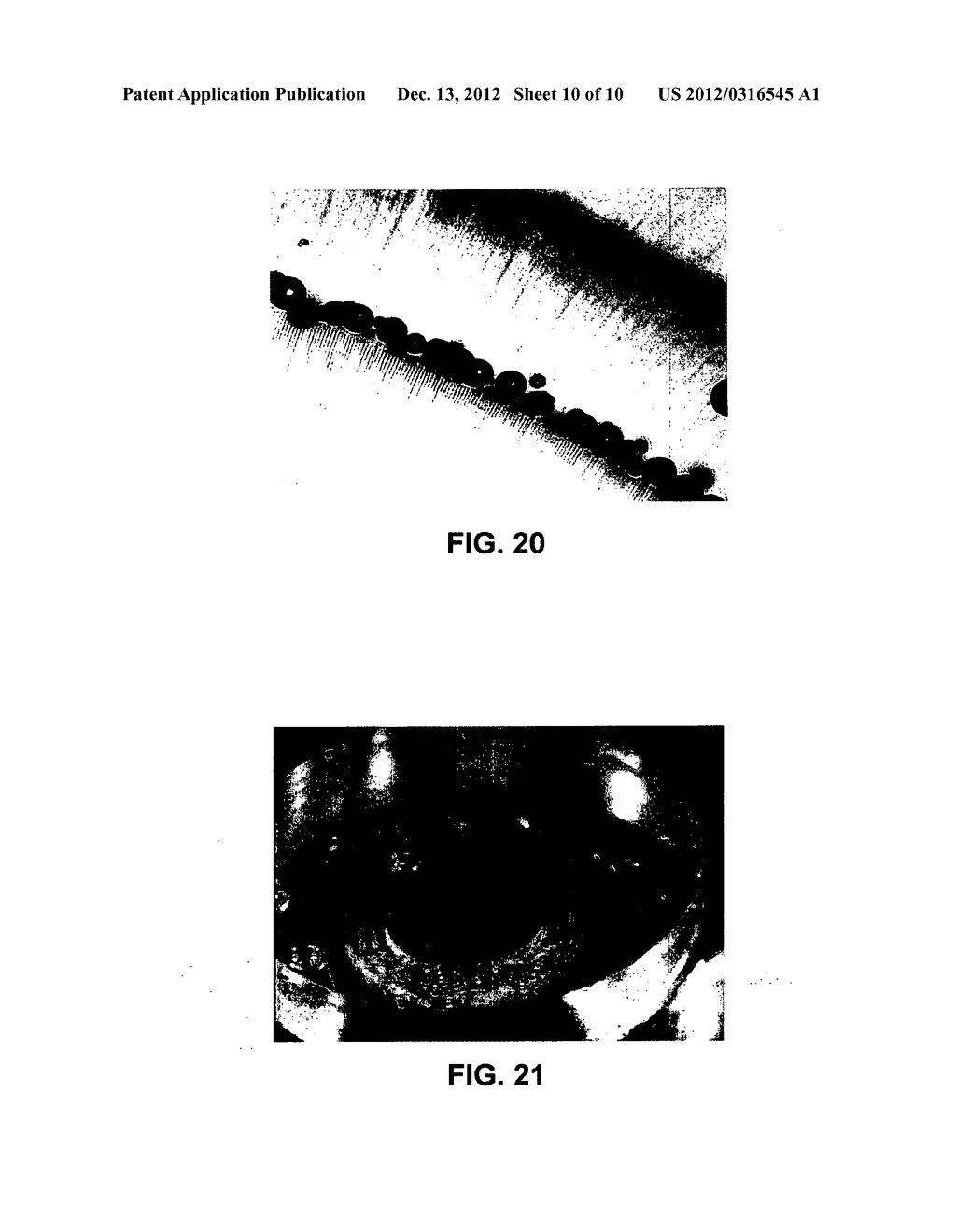 METHOD AND APPARATUS FOR PATTERNED PLASMA-MEDIATED LASER TREPHINATION OF     THE LENS CAPSULE AND THREE DIMENSIONAL PHACO-SEGMENTATION - diagram, schematic, and image 11