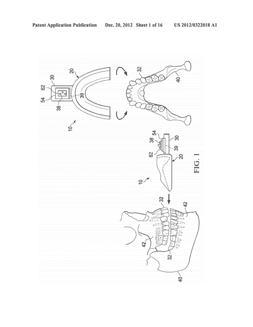 VIBRATING ORTHODONTIC REMODELLING DEVICE - diagram, schematic, and image 02