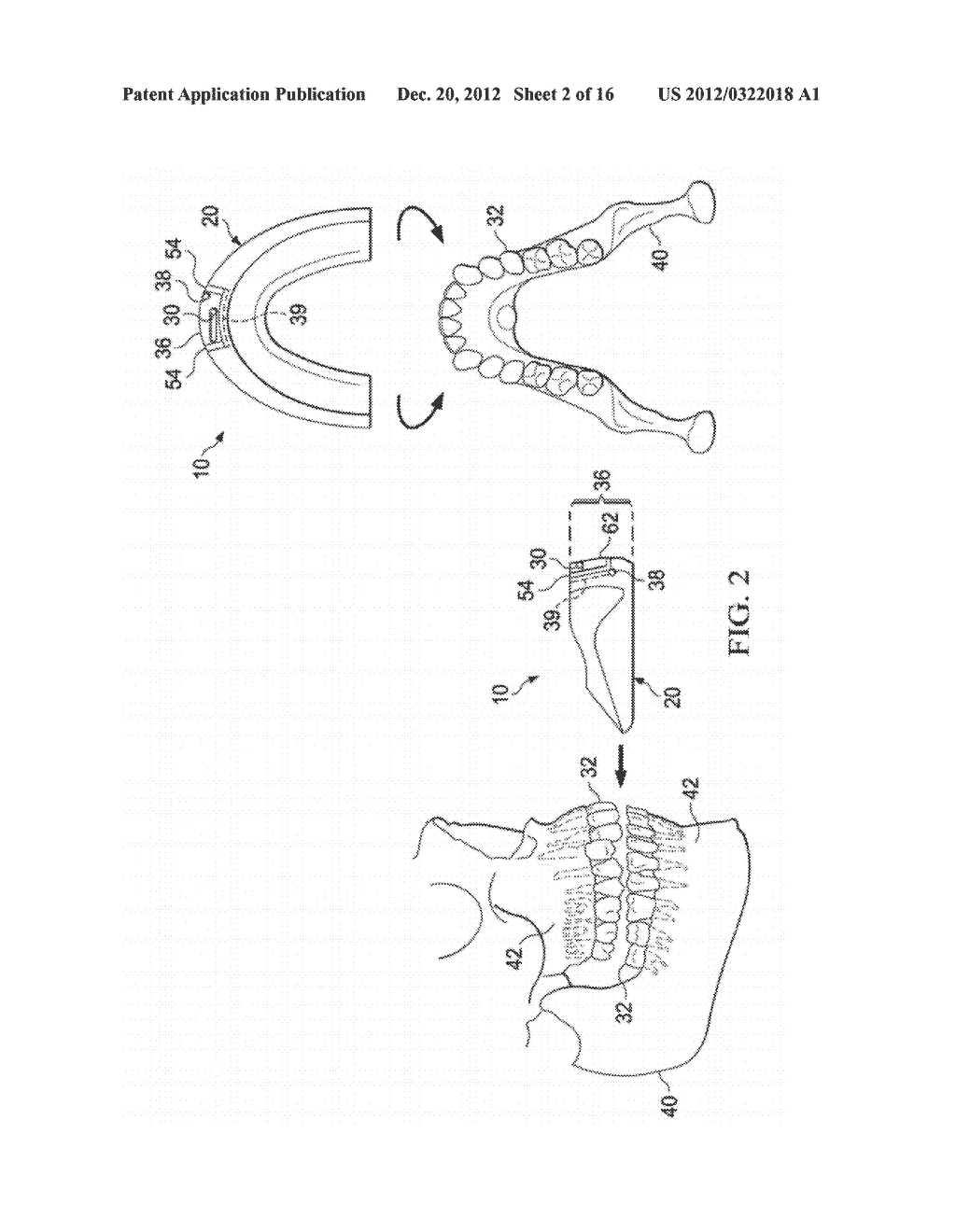 VIBRATING ORTHODONTIC REMODELLING DEVICE - diagram, schematic, and image 03