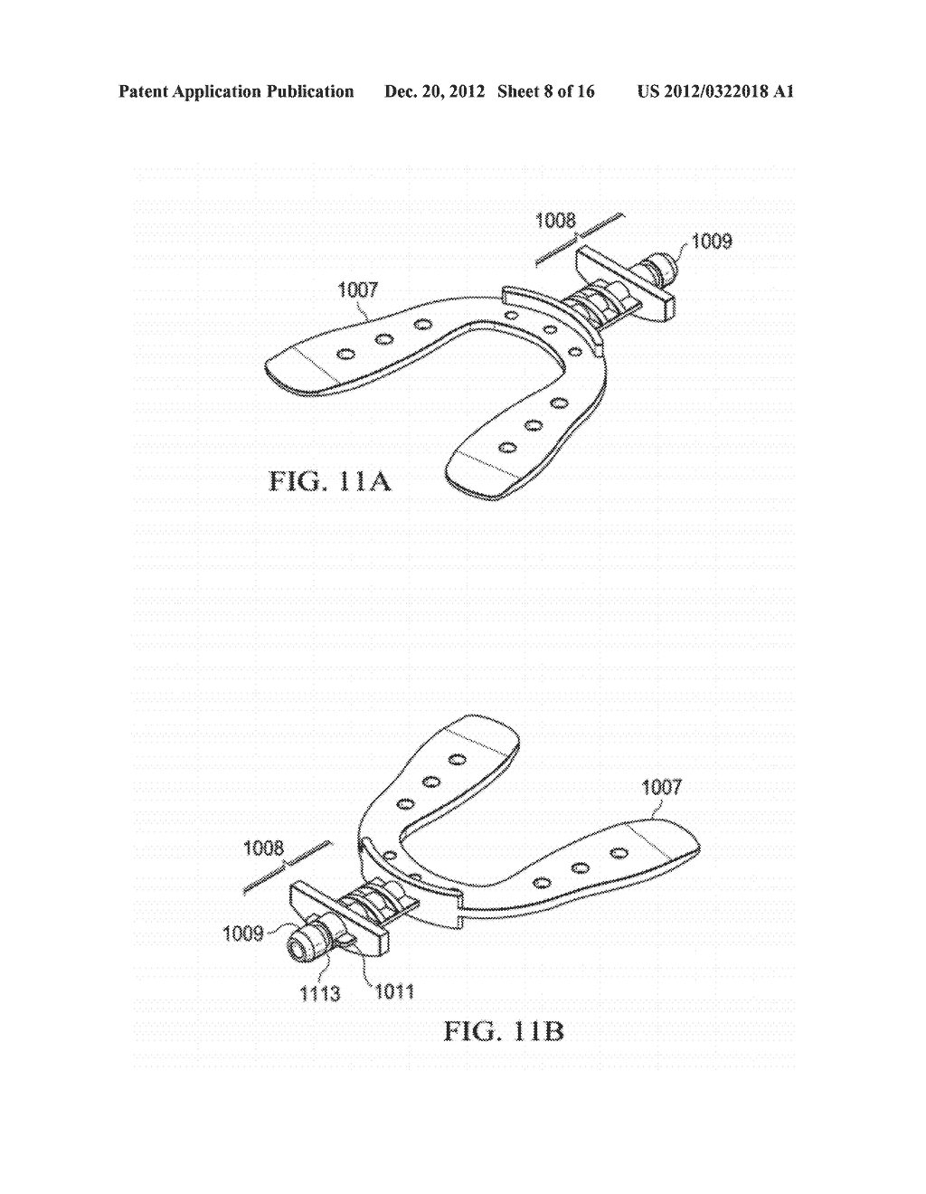 VIBRATING ORTHODONTIC REMODELLING DEVICE - diagram, schematic, and image 09