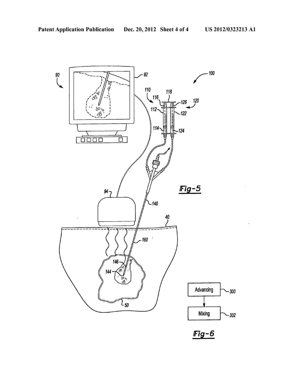 THERMO-CHEMICAL MEDICAL DEVICE FOR MANIPULATION OF TISSUE - diagram, schematic, and image 05