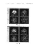 SYSTEM FOR RAPID AND ACCURATE QUANTITATIVE ASSESSMENT OF TRAUMATIC BRAIN     INJURY diagram and image