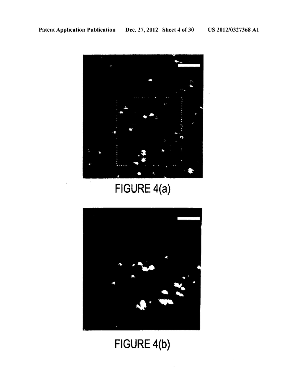 METHOD AND APPARATUS FOR IMAGING IN AN EYE - diagram, schematic, and image 05
