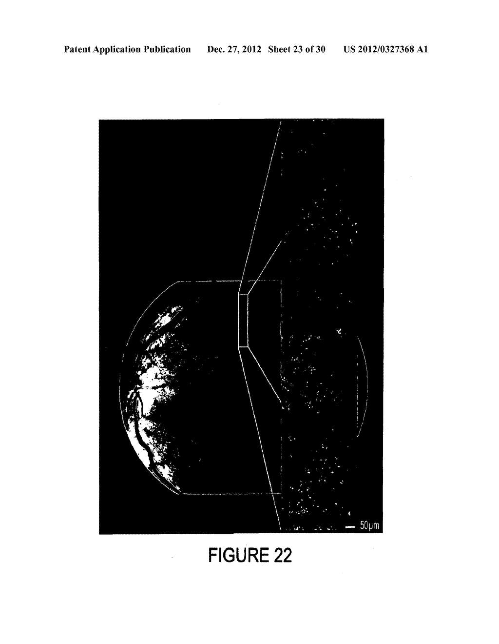METHOD AND APPARATUS FOR IMAGING IN AN EYE - diagram, schematic, and image 24