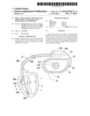 IMPLANTABLE MEDICAL DEVICE SENSING WIRELESS ECG AS SUBSTITUTE FOR     INTRACARDIAC ELECTROGRAM diagram and image