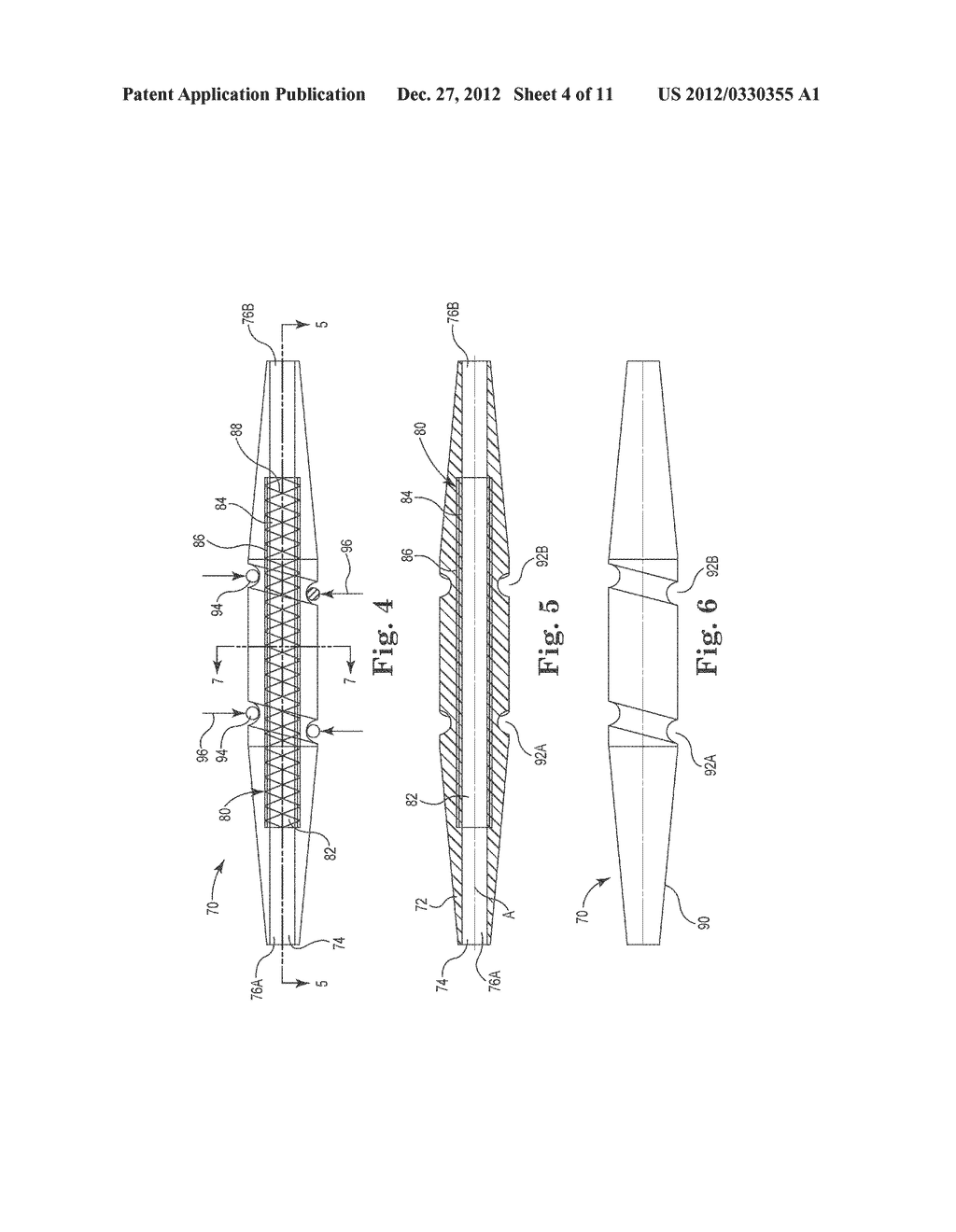 MULTI-DUROMETER REINFORCED SUTURE SLEEVE - diagram, schematic, and image 05