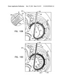 CLOSURE ELEMENT FOR USE WITH AN ANNULOPLASTY STRUCTURE diagram and image