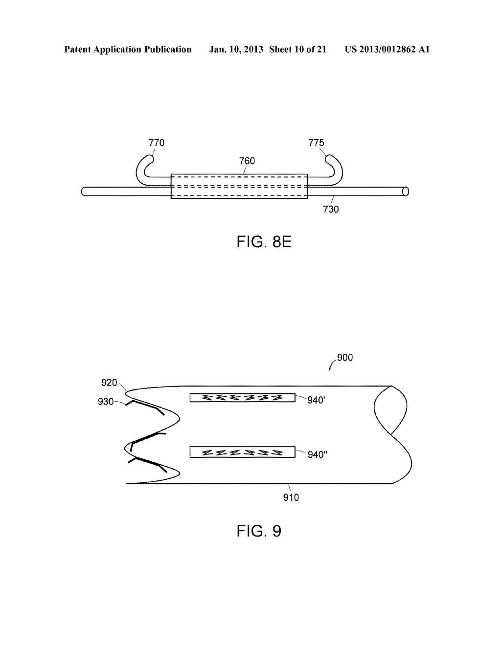 METHODS AND APPARATUS FOR ANCHORING WITHIN THE GASTROINTESTINAL TRACT - diagram, schematic, and image 11