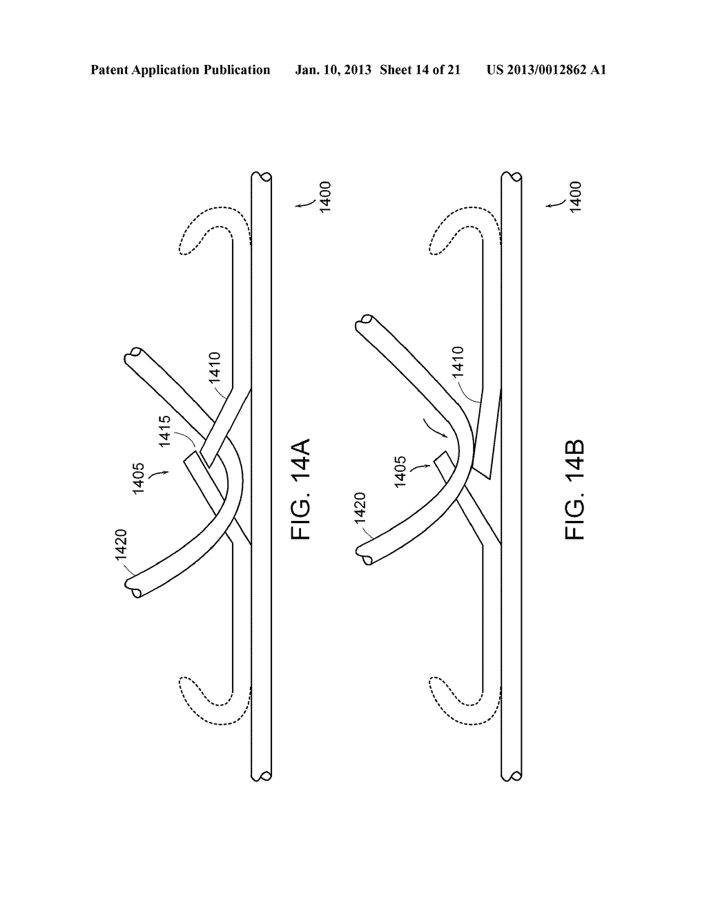 METHODS AND APPARATUS FOR ANCHORING WITHIN THE GASTROINTESTINAL TRACT - diagram, schematic, and image 15