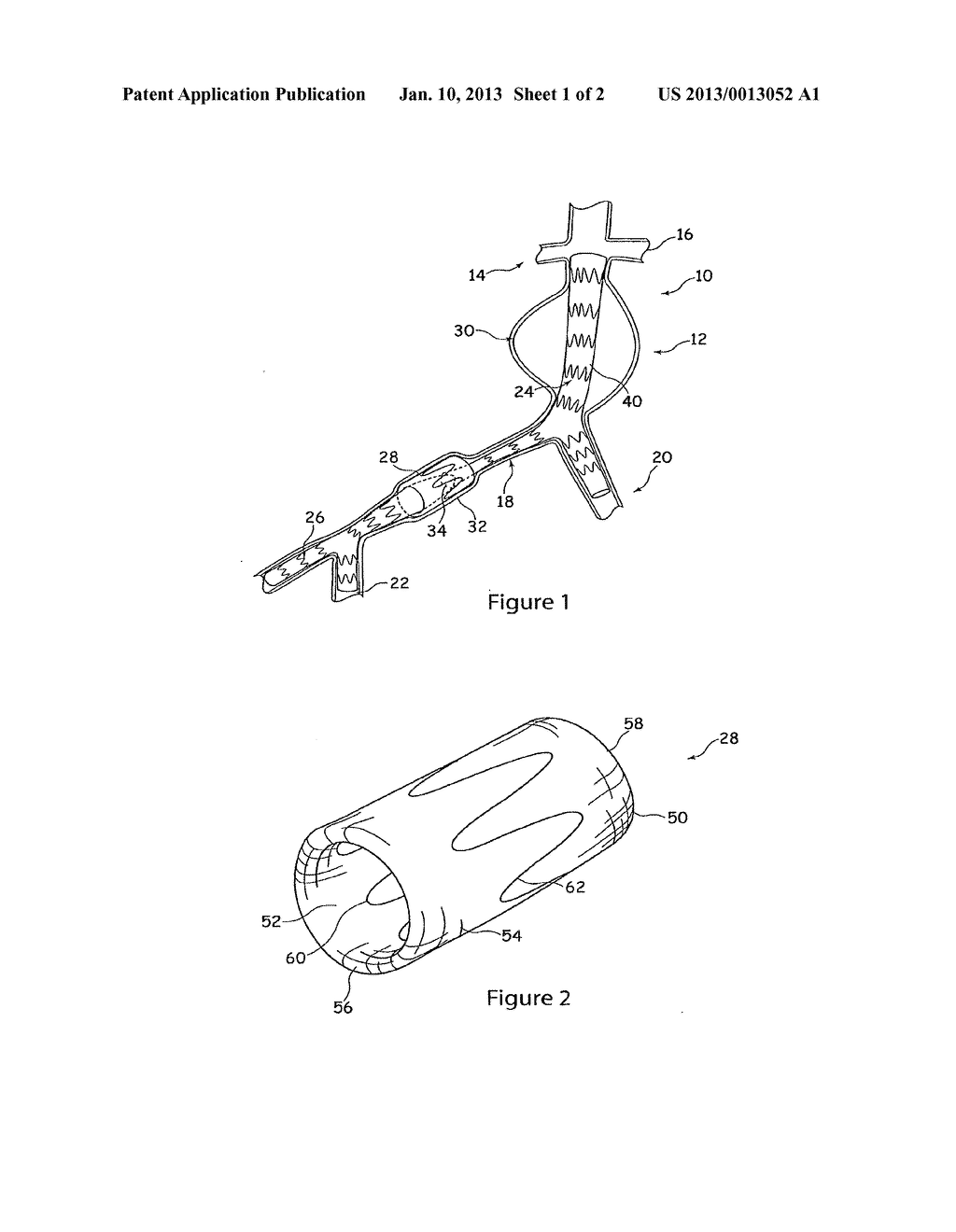 PROSTHESIS COUPLING DEVICE AND METHOD - diagram, schematic, and image 02