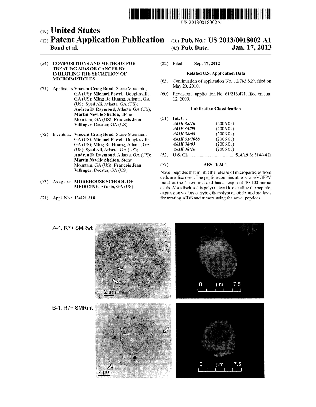 COMPOSITIONS AND METHODS FOR TREATING AIDS OR CANCER BY INHIBITING THE     SECRETION OF MICROPARTICLES - diagram, schematic, and image 01