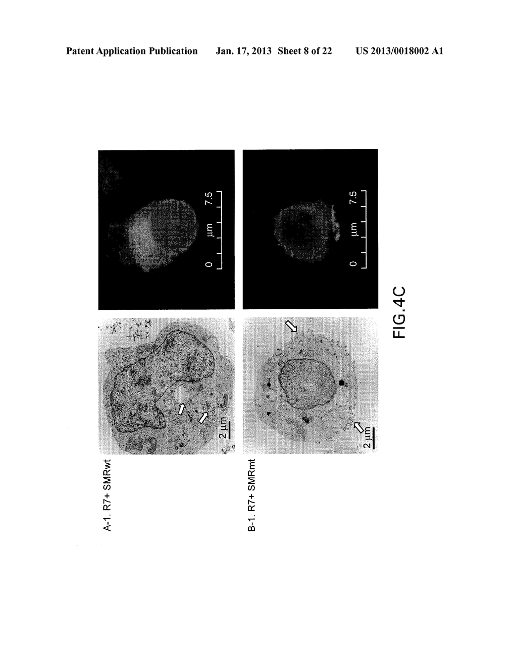 COMPOSITIONS AND METHODS FOR TREATING AIDS OR CANCER BY INHIBITING THE     SECRETION OF MICROPARTICLES - diagram, schematic, and image 09