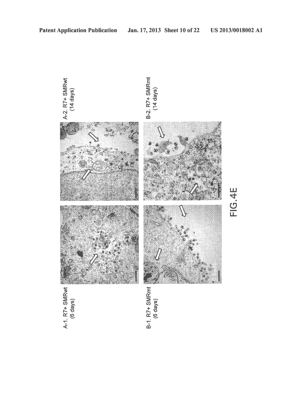 COMPOSITIONS AND METHODS FOR TREATING AIDS OR CANCER BY INHIBITING THE     SECRETION OF MICROPARTICLES - diagram, schematic, and image 11